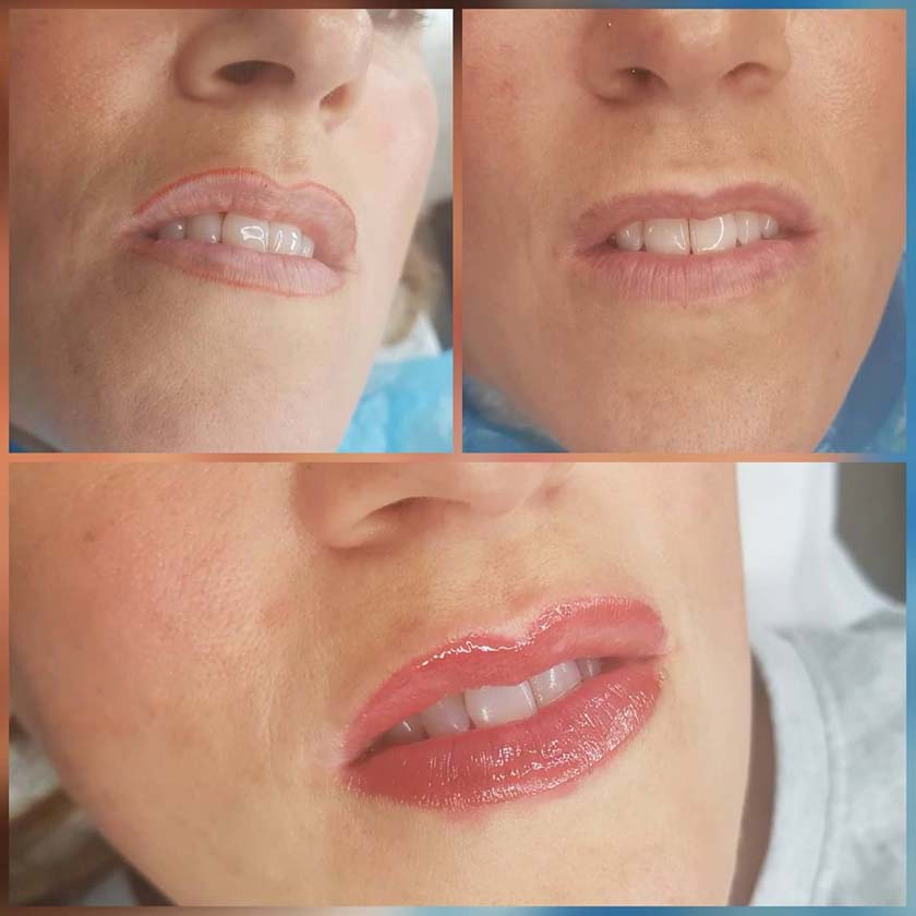 Before and After Permanent Lip Blush Before Lip Blush - Lip Liner - NKL Permanent Makeup Hampshire