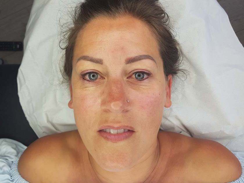 Full Face of Permanent Makeup Before and After Permanent Lip Blush Before Lip Blush - Lip Liner - NKL Permanent Makeup Hampshire